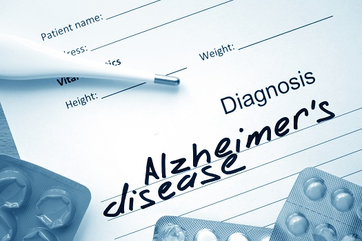 What to Ask After an Alzheimers Diagnosis in Montgomery, AL