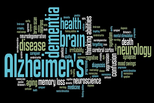 Little-Known Facts About Alzheimer in Montgomery, AL